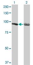 H00000271-M05 - AMP deaminase 2 / AMPD2