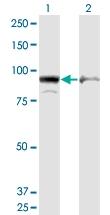 H00000271-M09 - AMP deaminase 2 / AMPD2