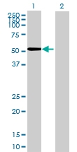 H00000277-B01 - Alpha-amylase 1