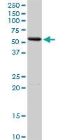 H00000279-D01P - Alpha-amylase 2A / AMY2A