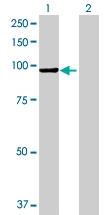 H00000280-B01 - Alpha-amylase 2B