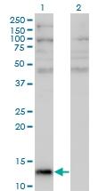 H00000283-M05 - Angiogenin