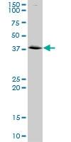 H00000302-D01P - Annexin A2 / ANXA2