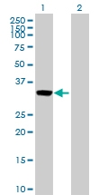 H00000306-D01P - Annexin A3 / ANXA3