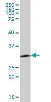 H00000307-B01P - Annexin A4 / ANXA4