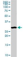 H00000307-D01P - Annexin A4 / ANXA4