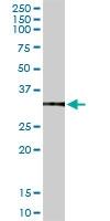 H00000308-D01P - Annexin A5 / ANXA5