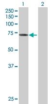 H00000313-B01P - Acyloxyacyl hydrolase (AOAH)