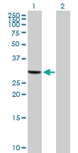 H00000319-B01 - Apolipoprotein F / Apo F