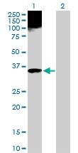 H00000319-D01P - Apolipoprotein F / Apo F