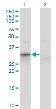 H00000319-M02 - Apolipoprotein F / Apo F