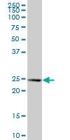 H00000335-B01P - Apolipoprotein A I / APO AI