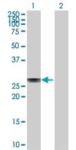 H00000335-D01P - Apolipoprotein A I / APO AI