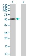 H00000350-D01P - Apolipoprotein H (Apo H)