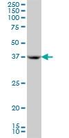 H00000350-M01A - Apolipoprotein H (Apo H)