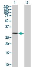 H00000354-D01P - Kallikrein-3 / PSA / KLK3