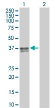 H00000356-B01 - CD178 / Fas Ligand