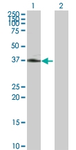 H00000356-D01P - CD178 / Fas Ligand