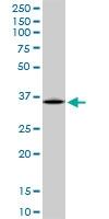 H00000383-B02P - Arginase-1