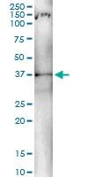 H00000383-D01 - Arginase-1