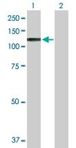 H00000405-B01P - HIF1 beta / ARNT