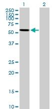 H00000410-B01P - Arylsulfatase A