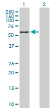 H00000410-D01P - Arylsulfatase A