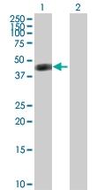 H00000435-D01P - Arginosuccinase