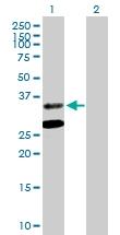 H00000443-B01P - Aminoacylase-2 / ACY2