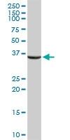 H00000443-D01 - Aminoacylase-2 / ACY2