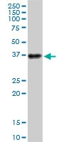 H00000483-B01P - CD298 / ATP1B3