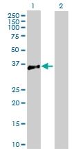 H00000483-D01P - CD298 / ATP1B3