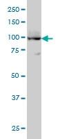 H00000489-M01 - ATP2A3 / SERCA3
