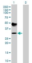 H00000496-B01P - ATP4B