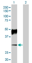 H00000496-D01P - ATP4B