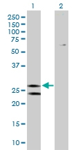 H00000515-B02P - ATP5F1