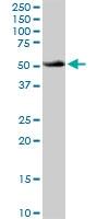 H00000525-D01P - ATP6V1B1
