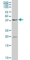 H00000528-A01 - ATP6V1C1