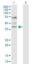 H00000528-D01P - ATP6V1C1