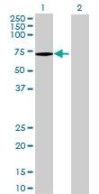 H00000537-B01 - ATP6AP1