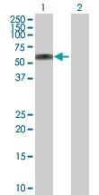H00000537-D01P - ATP6AP1