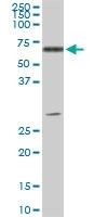 H00000537-M01 - ATP6AP1