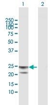 H00000539-B01P - ATP synthase subunit O