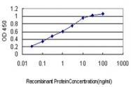 H00000567-M01 - Beta-2-microglobulin