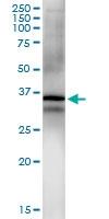 H00000595-D01 - Cyclin D1
