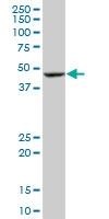 H00000642-M02 - Bleomycin hydrolase