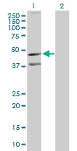 H00000643-D01P - CD185 / CXCR5