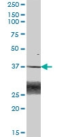 H00000644-B01P - Biliverdin reductase A