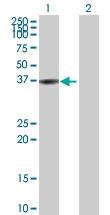 H00000644-D01P - Biliverdin reductase A