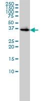 H00000644-M01 - Biliverdin reductase A